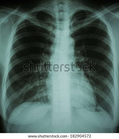 normal chest X-ray of a woman - stock photo
