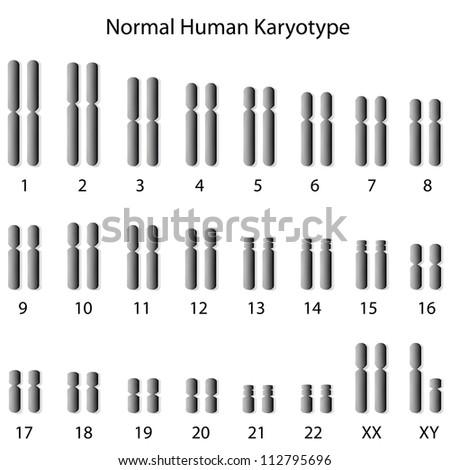 Normal human karyotype - stock photo