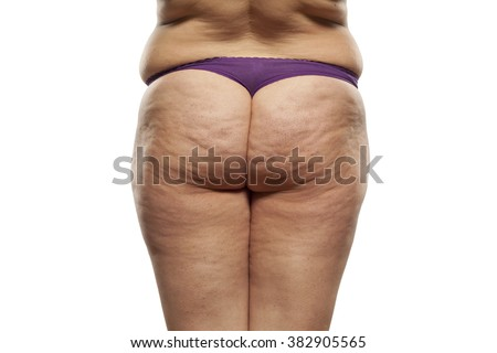 Nude fat wife with stretch marks