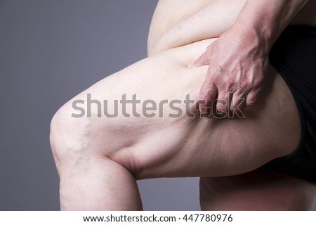 Obesity female body, fat woman legs close up on gray background - stock photo