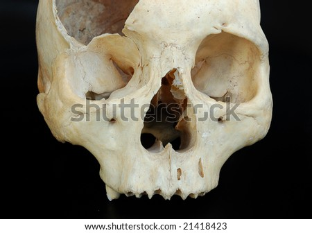Old broken skull against black. Brocken human skull isolated on dark background. single skull  front view isolated with copyspace. Skull grungy.