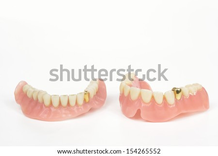 old dentures with gold tooth - stock photo