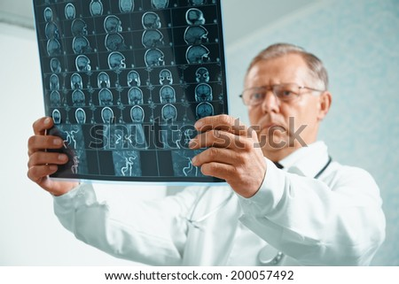 Older man doctor is analyzing MRI image of human head in hospital
