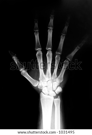 Open hand radiography