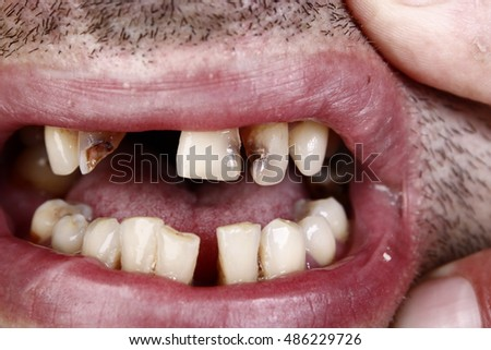 Bad teeth oral sex pictures