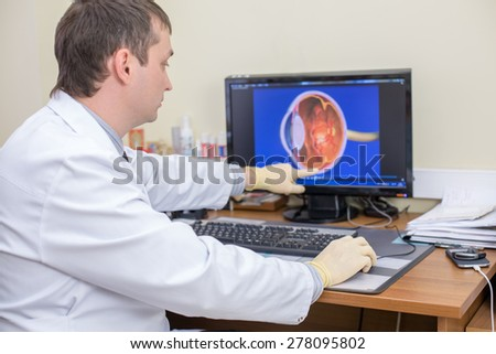 ophthalmologist at work points at computer screen - stock photo