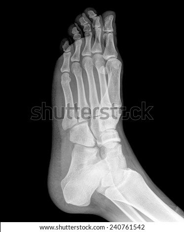 Original x-ray image of a foot, front  view
