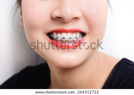 Orthodontic dental in beautiful young asian girl - stock photo
