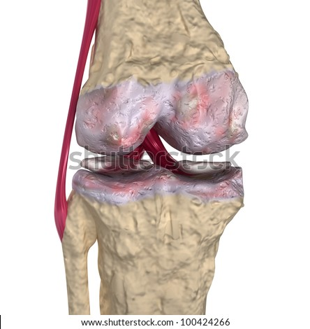 Osteoarthritis : Knee joint with ligaments and cartilages - stock photo