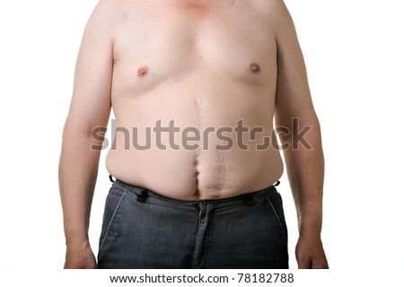 Overweight man poses for a before picture. He really needs a diet!