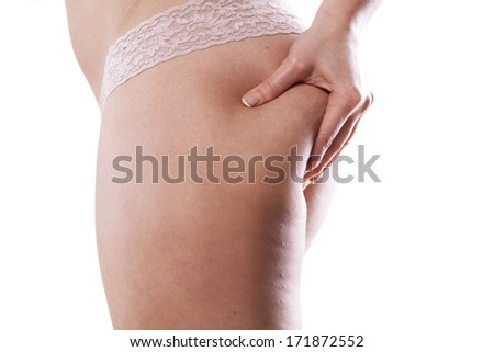 Overweight woman holding and pinching fat body bottom