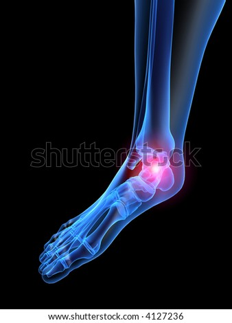 pain in foot - stock photo