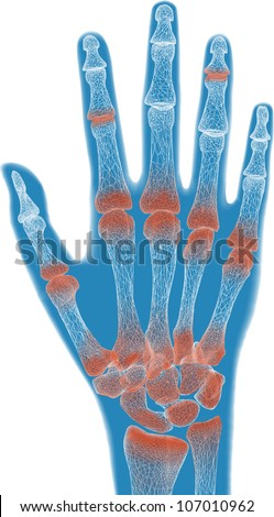 painful blue hand anatomy - stock photo