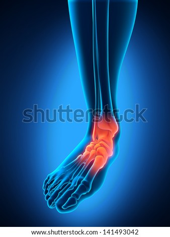 Painful Foot - stock photo