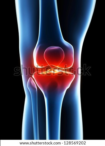 painful knee - stock photo