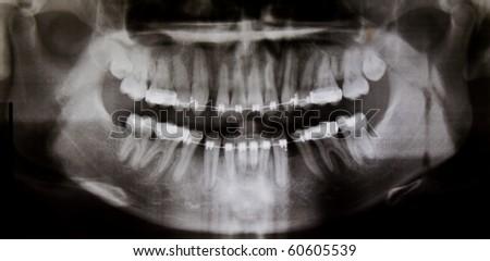 Panoramic dental X-Ray - stock photo