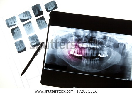 Panoramic dental X-Ray for dentist and dental care in Computer screen and film  - stock photo