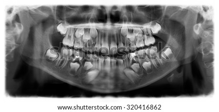 Panoramic dental x-ray of child of seven (7) years. Black and white image roentgen teeth upper and lower jaw skull of girl. Negative shot of the digital picture - stock photo