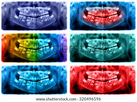 Panoramic dental x-ray of child of seven (7) years. Black and white image roentgen teeth upper and lower jaw skull of girl. Violet, blue, spectrum, red, green, purple colors - stock photo