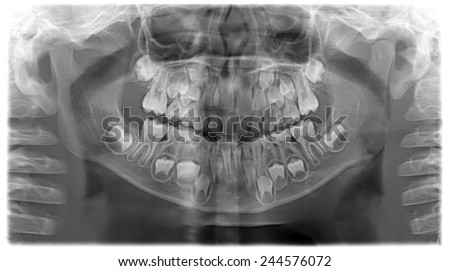 Panoramic dental X-Ray of child - 7 years, all teeth in view - stock photo