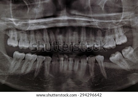Panoramic Dental X-Ray Of Human Teeth - stock photo