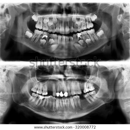 Panoramic dental x-ray tooth's of young man of 30 (thirty) and child of 7 (seven) years. Black and white image roentgen teeth upper and lower jaws of skull. The medical digital picture - stock photo