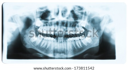 Panoramic x-ray image of teeth and mouth with all four molars vertically impacted and still not grown and visible in the jaw bone. Filled cavities visible.