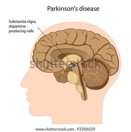Parkinson's disease - stock photo