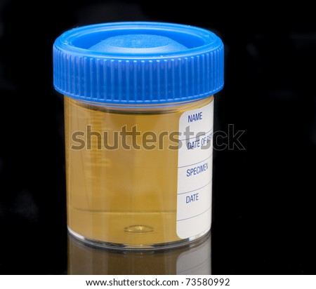 pathology test jar containing a urine sample on a dark background
