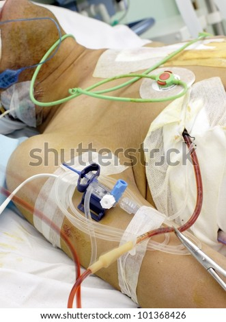 patient in the ICU. Seriously ill in bed with various tubes and medical devices - stock photo