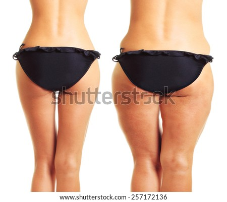 Perfect and fat cellulite woman's body isolated on white background. - stock photo