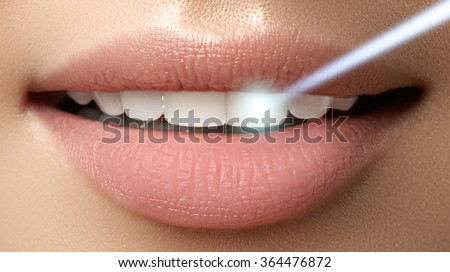Perfect smile after bleaching. Dental care and whitening teeth. Laser teeth whitening - stock photo