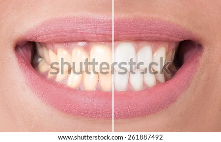 Perfect smile before and after bleaching. Dental care and whitening concept - stock photo