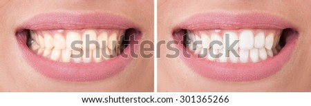Perfect woman smile before and after bleaching or whitening concept - stock photo