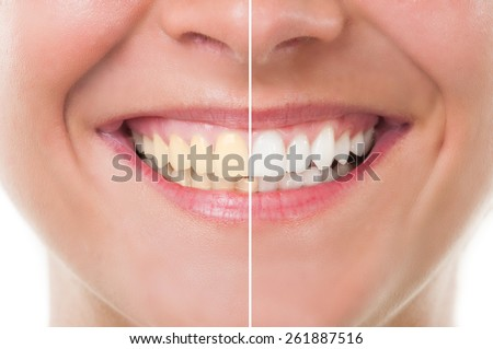 Perfect woman smile before and after whitening. Dental care and periodic exam concept - stock photo