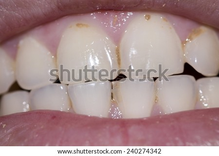Periodic dental examination to have a healthy mouth and teeth.  - stock photo