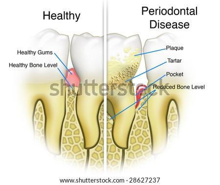 Periodontal Disease Detail Textbook Illustration - stock photo