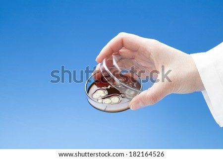 Petri dish with colonies of bacteria in hand - stock photo