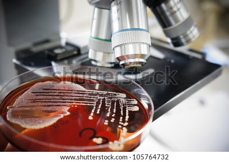 Petri dish with successful grown culture on microscop background - stock photo