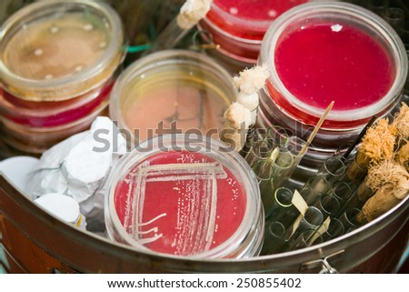 Petri dishes and test tubes stacked in metal container. Petri dish with bacteria growing in it. Medical tests and research. Bacterial cultures in hospital laboratory glassware. - stock photo