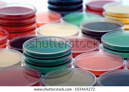 petri dishes with culture medium/selection of different media plates - stock photo
