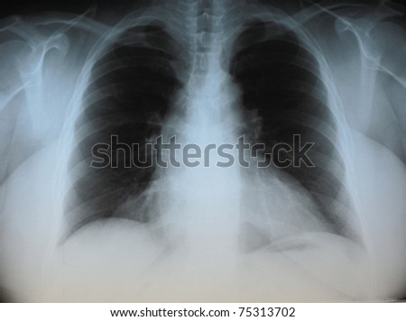 photo chest radiograph of patients with heart defect. For professional use, illustrations