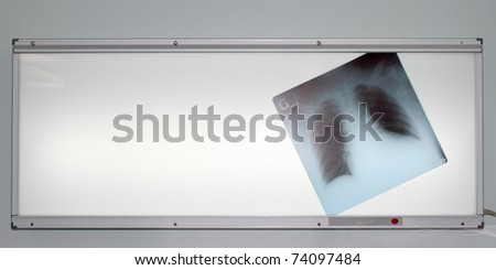 photo chest radiographs located on negatoscope - stock photo
