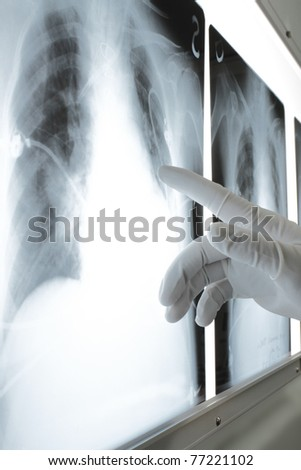 photo gloved hands, pointing at the site rengenogramme - stock photo