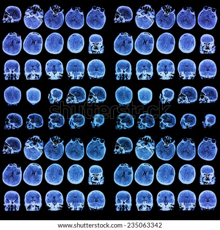 Photo of medical tomography. Medical background - stock photo