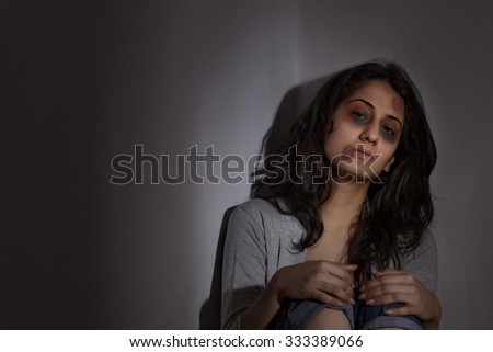 Physically abused woman - stock photo