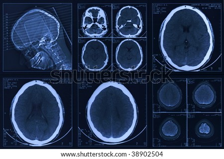 Picture of a tomography of a brain.