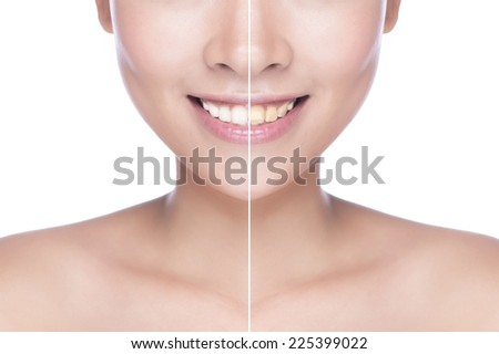 picture of beautiful woman with white teeth. woman teeth before and after whitening. Over white background - stock photo