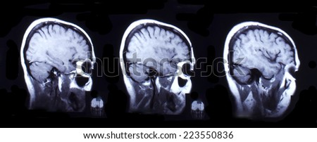 Picture of computed tomography the brain. Black and white.