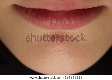 Pimple on a girls chin - stock photo